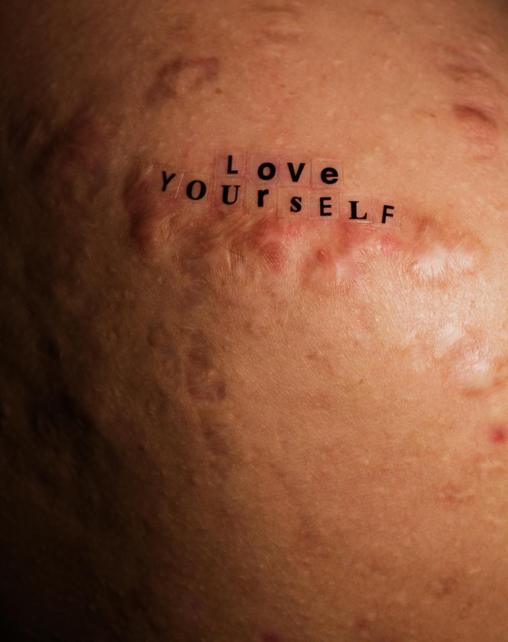 Peter DeVito: Retratos sin retoque y sin estigmas que demuestran que el acné es normal
