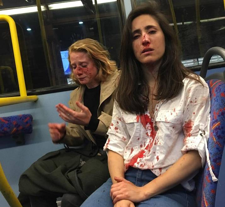 Liberan bajo fianza a los responsables del ataque a la pareja lesbiana en Londres