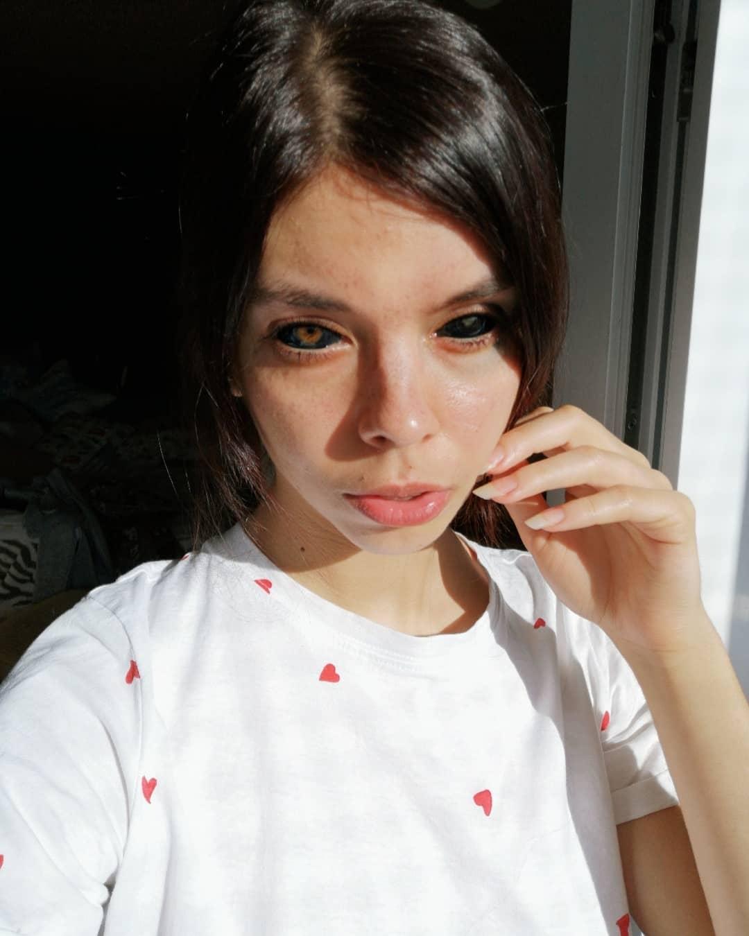 Joven polaca pierde la vista tras tatuarse los globos oculares