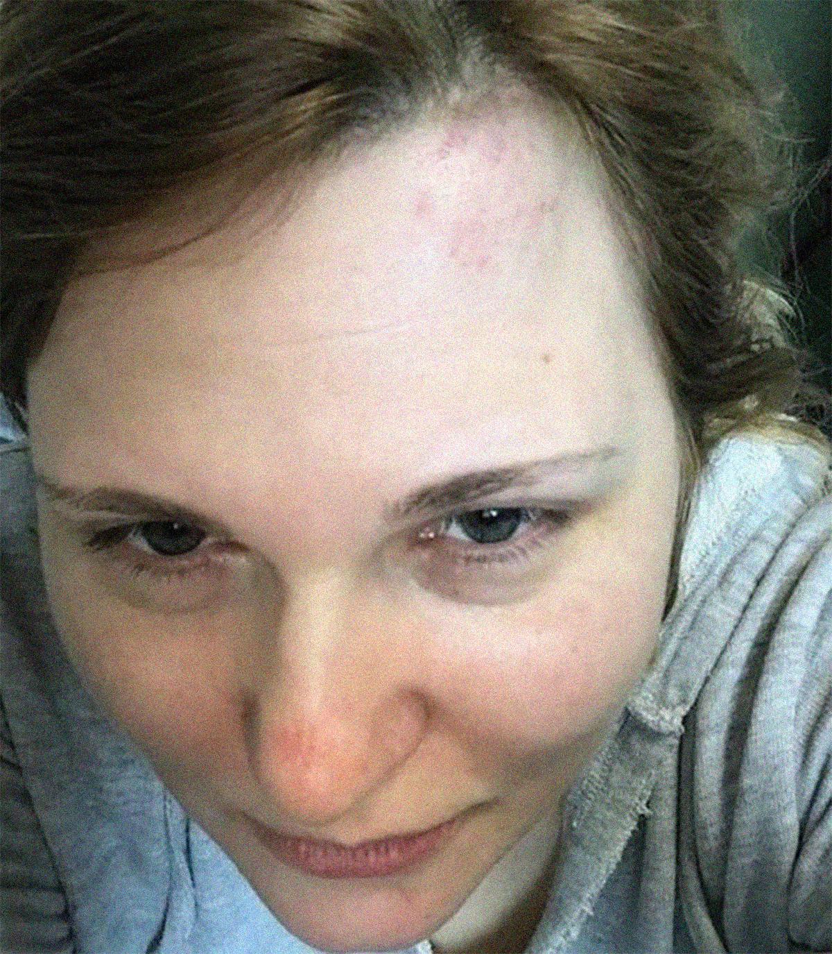 Periodista rusa que denunció torturas a gays en Rusia sufre golpiza