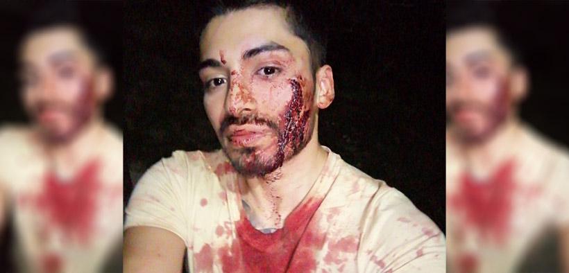 Chile: Joven es desfigurado tras ataque homofóbico con puños, palos y piedras