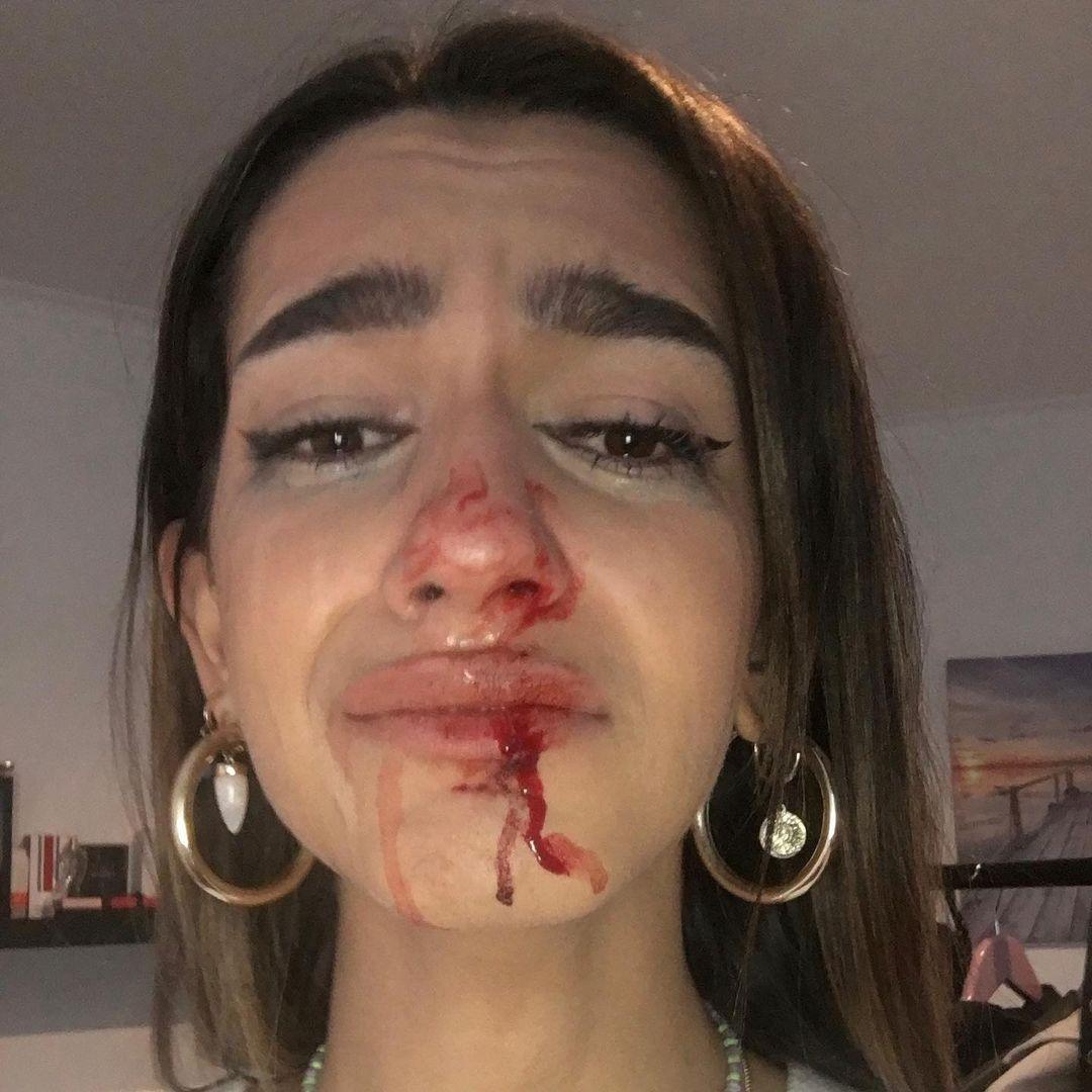 España: Joven trans de 19 años denuncia brutal agresión transfóbica en Barcelona