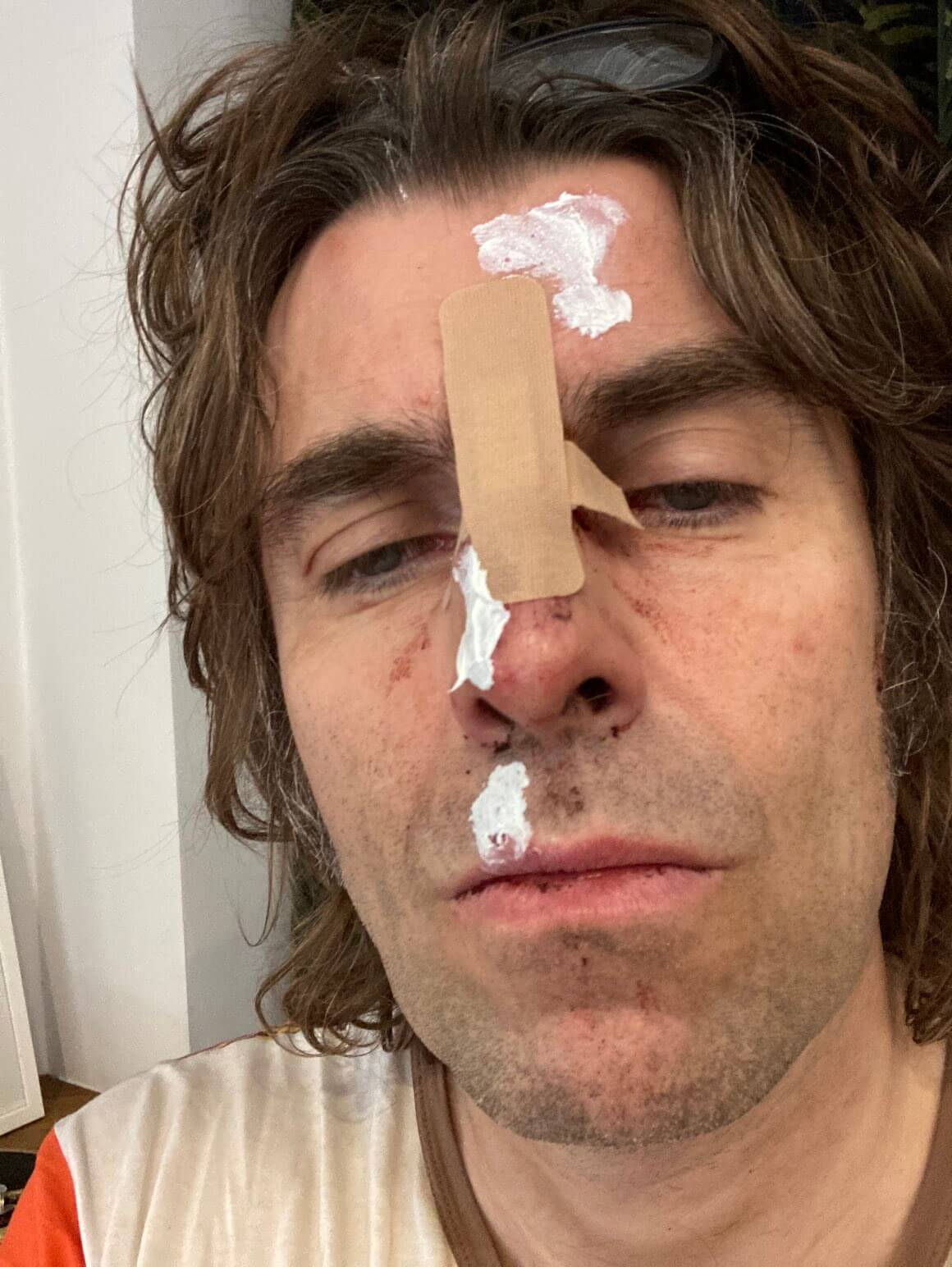 "Liam Gallagher sufre lesiones tras ""caerse de un helicóptero"""